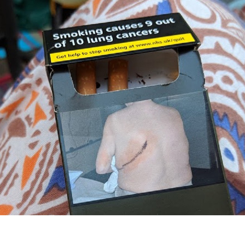 A packet of cigarettes with a health warning